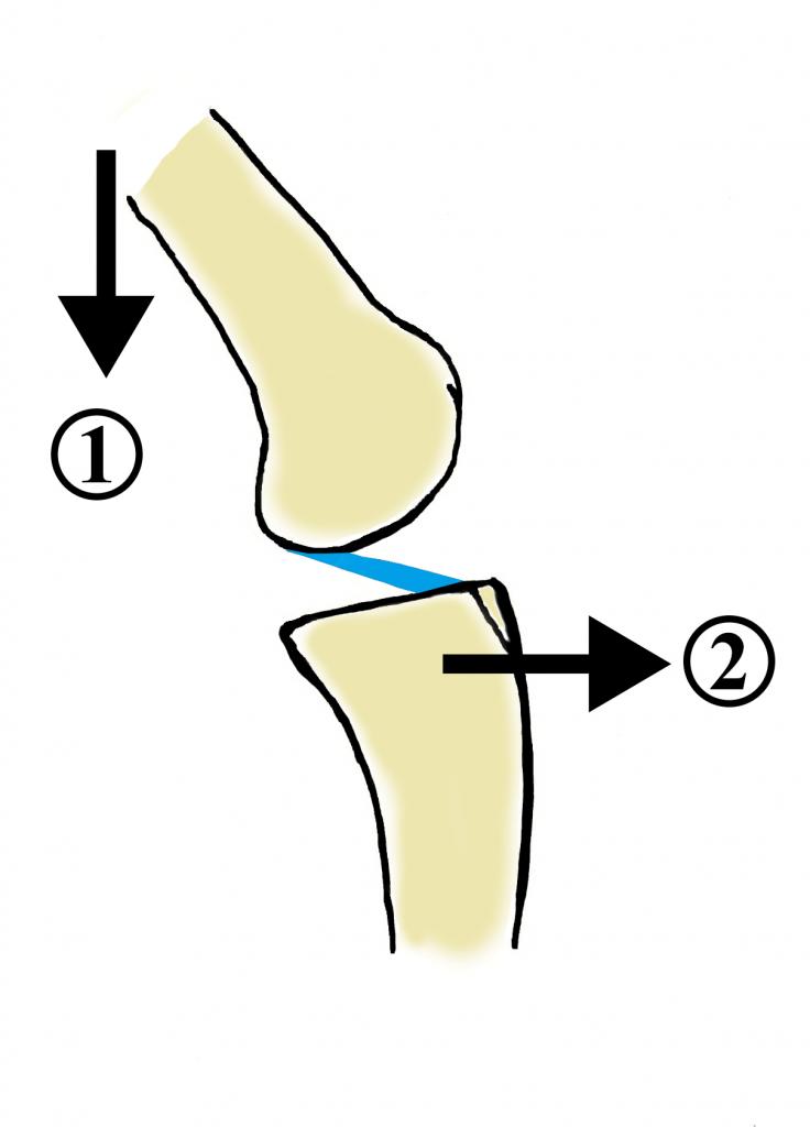 Abbildung 5: Modell der oben beschriebenen Übungen (1) Durch eingebrachte Flexion z.B. leichtes Wippen kommt es zur (2) anterioren Translation des ACL was wiederum zur Straffung dessen führt